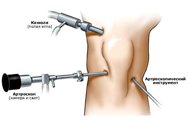 Оперативное лечение при хрусте в колене
