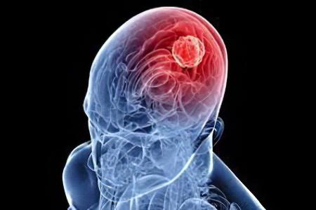 Отек коры головного мозга причины thumbnail