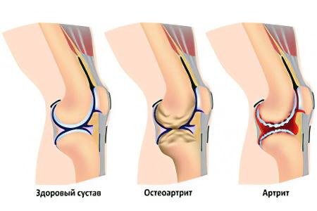 Причины хруста в коленных суставах