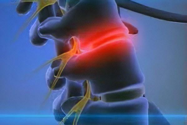 Контузионный отек костного мозга thumbnail