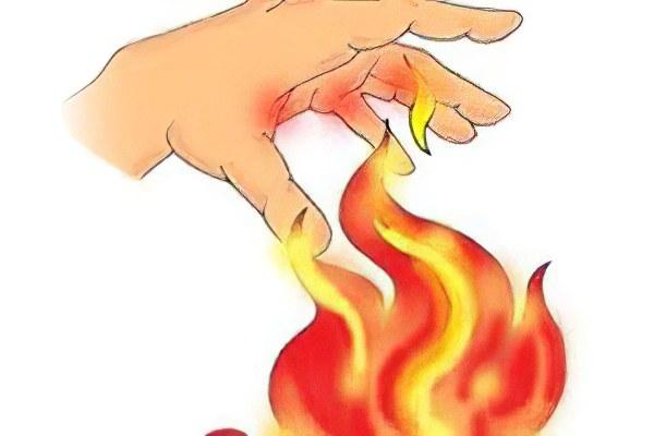 Термические ожоги и ожоговый шок thumbnail