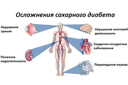 Какие лекарства помогут при диабете thumbnail