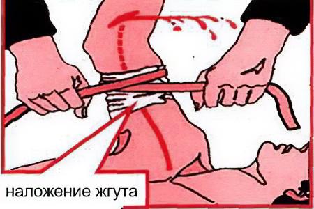 Если кровотечения с чистой кровью thumbnail