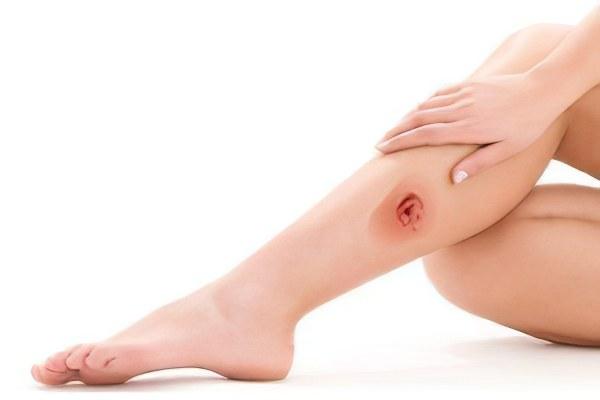Заразна ли трофическая язва ноги thumbnail