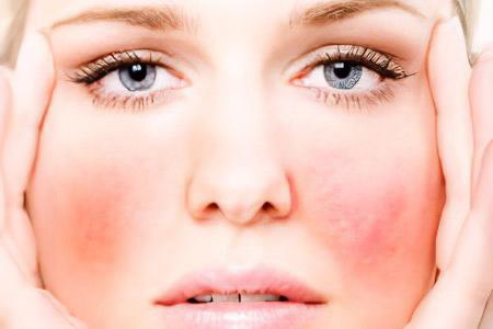 виды аллергии на лице фото