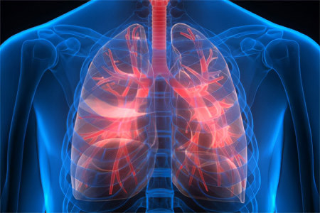 Отличие пневмонии от других лёгочных заболеваний
