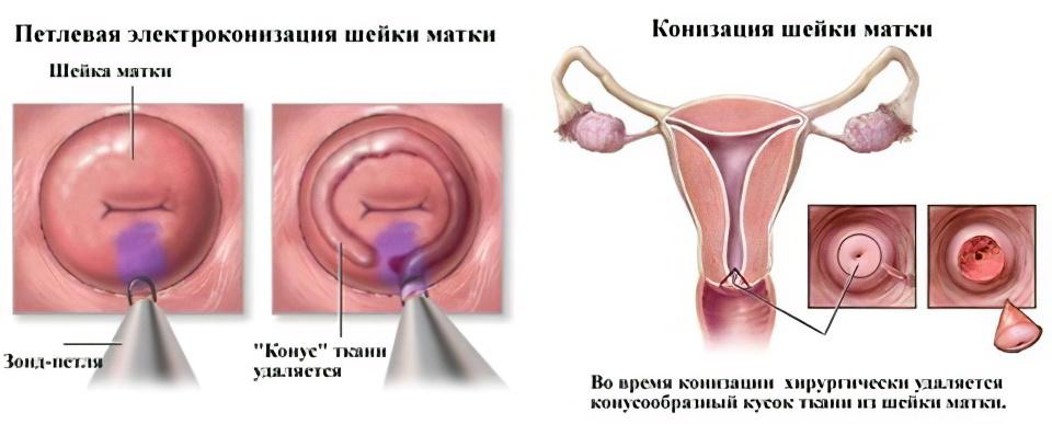 Электроконизация шейки матки при дисплазии 3 степени 27