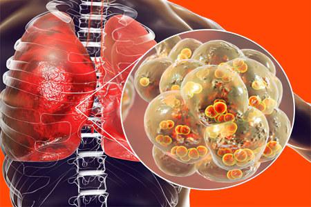Мифы о пневмонии