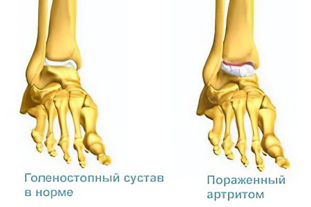 Что такое голеностопный артрит