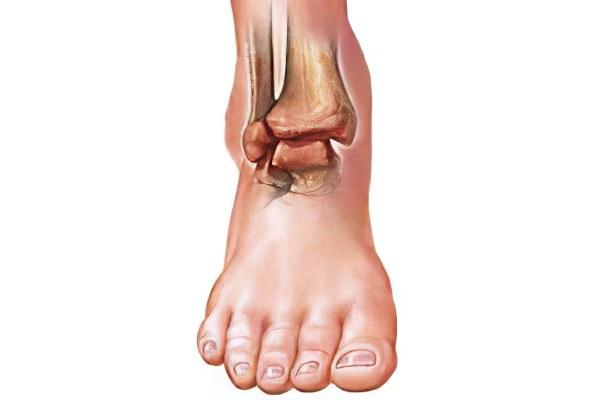 Артрит голеностопного сустава (голеностопный артрит) – причины ...