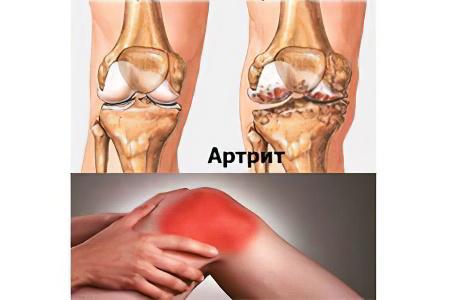 Артрит коленных суставов и их лечение эффективное лекарственное средство для лечения суставов