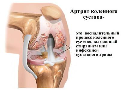 Артрит коленного сустава.питание подвывих тазобедренного сустава у взрослых симптомы
