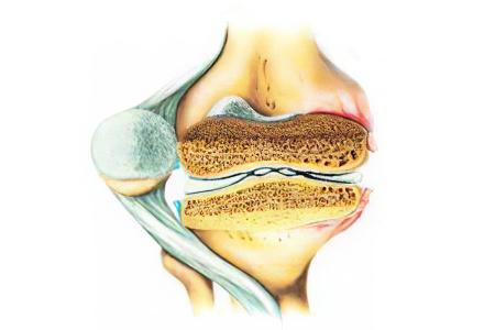 Стадии развития артрита коленного сустава
