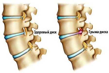 Грыжа шейного отдела позвоночника – симптомы, причины и лечение