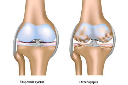 Остеоартроз коленного сустава гимнастика суставов пальцев