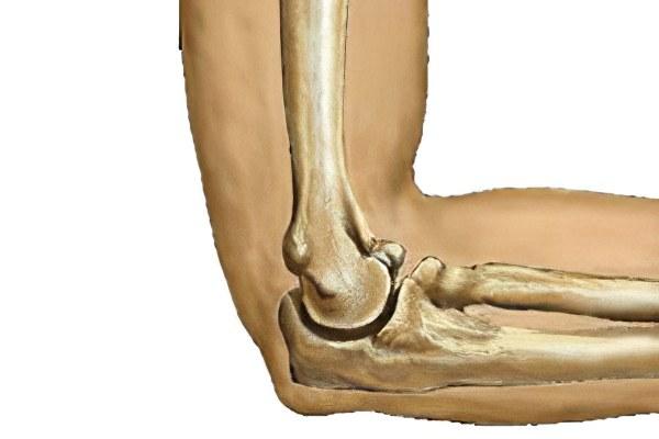 Доа правого локтевого сустава 2 степени боль в мышцах суставах симптомы