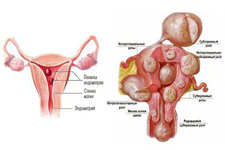 Остеохондроз симптомы и лечение медикаментами
