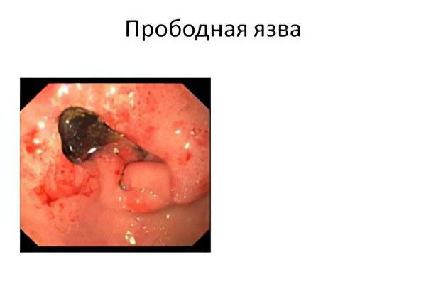 прободная язва желудка фото