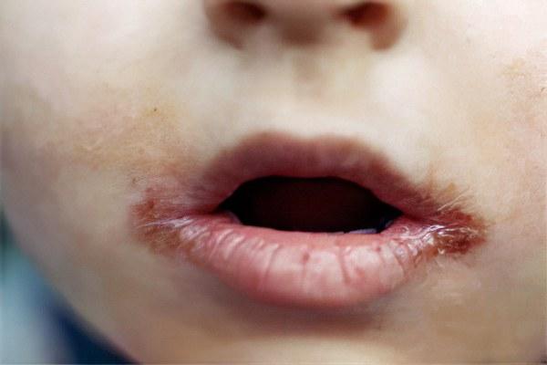 трещины и рубцы вокруг рта при врожденном сифилисе