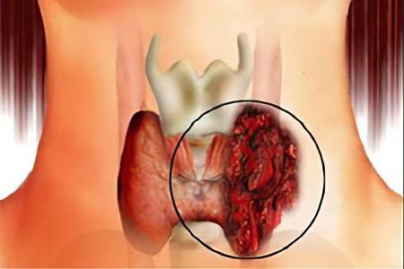 Аденома щитовидной железы: оперативное вмешательство