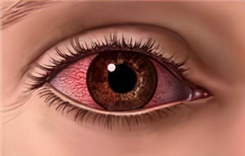 Аденовирусная инфекция – аденовирусная инфекция глаз, симптомы и лечение