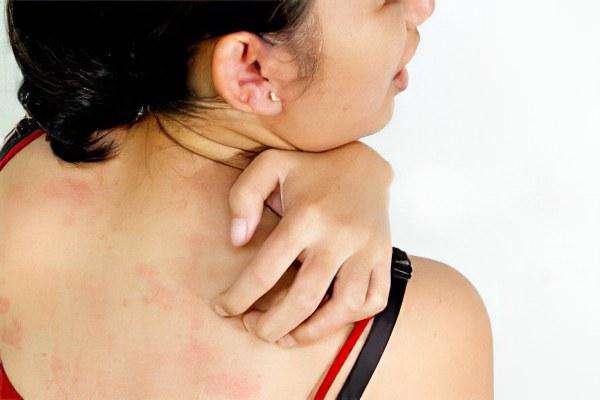 аллергия на коже от комаров