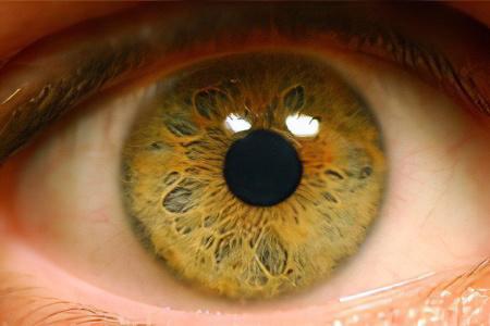 Ангиопатия сосудов сетчатки глаза – причины, симптомы и лечение