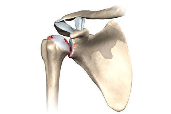 Истончение хряща в плечевом суставе лечение остиоартроза плечевого сустава