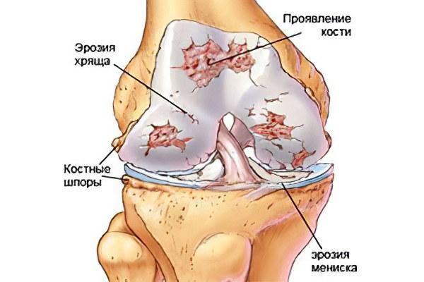 ledsmerter i knæ