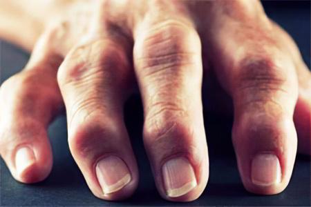 Расширение суставов на пальцах рук упражнения для суставов норбекова
