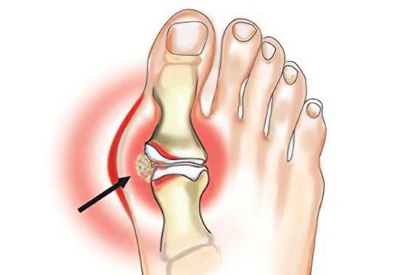 Симптомы артрита стоп