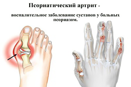 Чем лечить псориатический артрит коленного сустава острая боль в плечевом суставе и температура