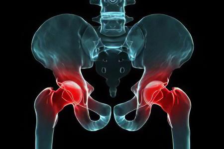 Посттравматический артрит тазобедренного сустава суставы и позвоночника