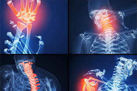 Изображение - Ювенильный артрит коленного сустава artriti-juvenil6754676