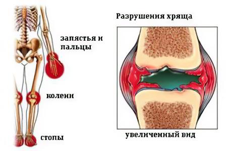Изображение - Ювенильный артрит коленного сустава artriti-juvenil6756