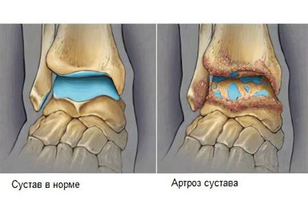 Артроз голеностопного сустава – причины, симптомы, степени и ...