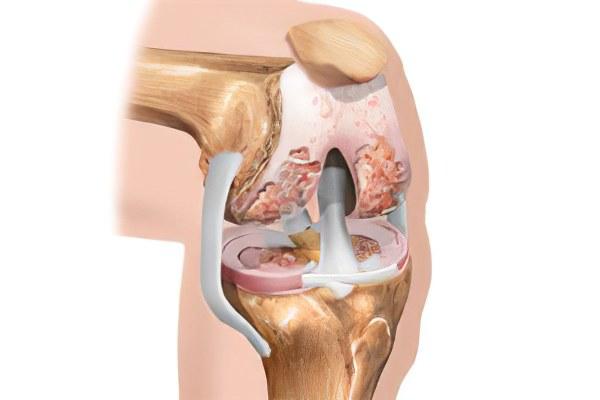 Артроз коленного сустава ktxtybt артрит и анкилоз височно-нижнечелюстного сустава