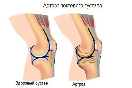 Сужение локтевых суставов лечение суставов на курортах израиля