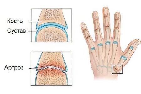 Артроз конечностей рук и ног лечение — Сайт о лечении заболеваний суставов