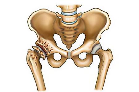 После клизмы пропадает боль тазобедренном суставе дисплазия тазобедренных суставов у детей до года и плавание