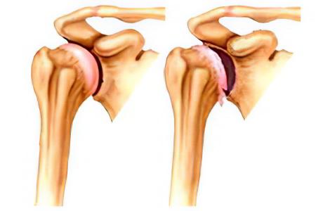 Артроз плечевого сустава – причины, симптомы, степени и лечение ...