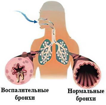 диетолог татьяна зайцева