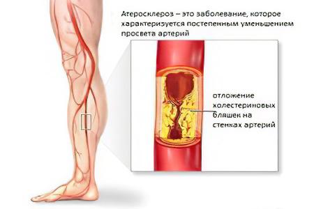 атеросклероз нормальном уровне холестерина