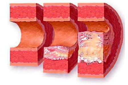 Снизить холестерин кефир и корица