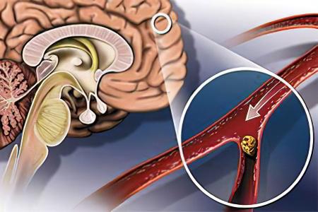 Атеросклеротические бляшки в сосудах норма