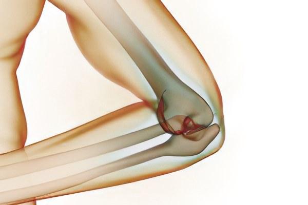Точечная боль на локтевом суставе для суставов дека дураболин