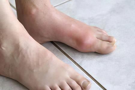 Почему болит косточка на ноге сбоку на щиколотке
