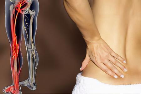 Боль в колено и пояснице