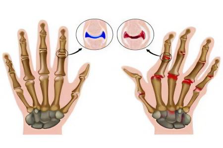 артропластика 1 плюснефалангового сустава последствия