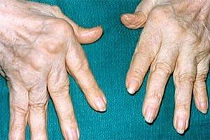 Покраснение суставов рук омега3 суставы